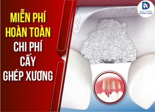 cấy ghép xương răng miễn phí tại nha khoa đông nam