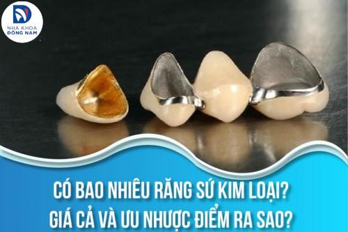 Có bao nhiêu răng sứ Kim Loại? Giá cả và ưu nhược điểm ra sao?