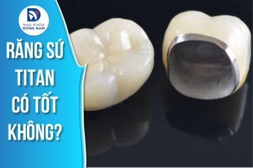 Răng sứ TITAN là răng sứ thế nào? Có tốt không? Giá bao nhiêu?