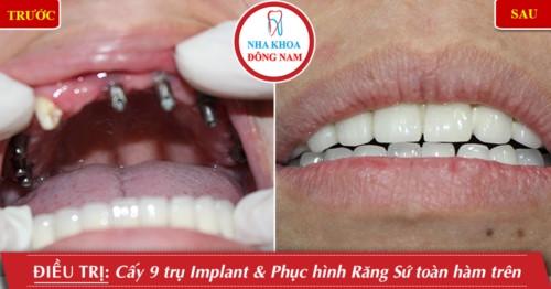 cấy implant etk hàm trên