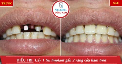 cấy 2 trụ implant cho răng cửa