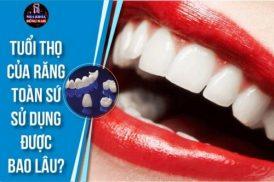 Tuổi thọ của răng toàn sứ sử dụng được bao lâu 1