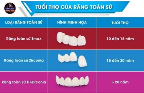 Tuổi thọ của răng toàn sứ sử dụng được bao lâu 5