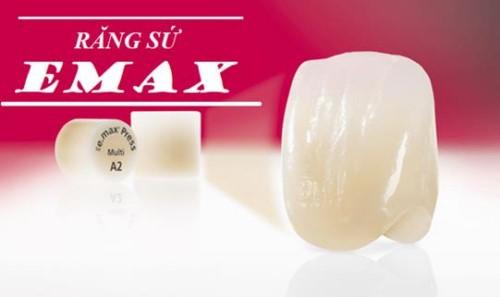Tuổi thọ của răng toàn sứ sử dụng được bao lâu 6