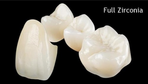 Tuổi thọ của răng toàn sứ sử dụng được bao lâu 8