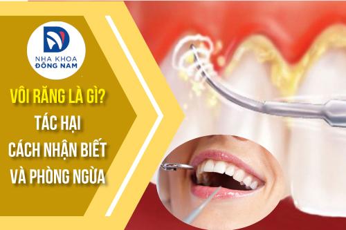 Vôi răng là gì tác hại của vôi răng