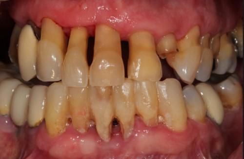 Vôi răng là gì tác hại của vôi răng 6