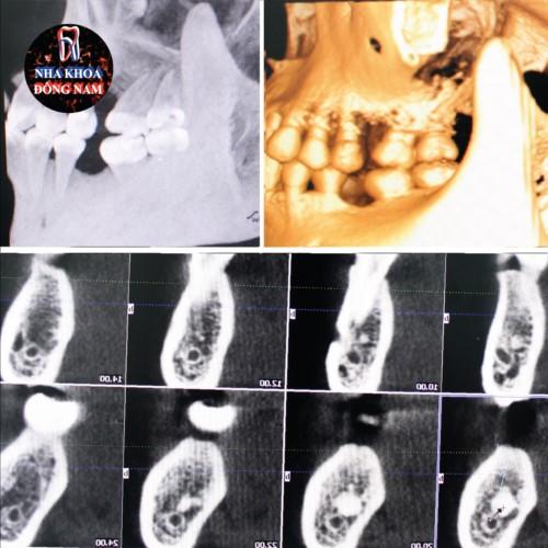 Cấy ghép Implant theo từng giai đoạn 3
