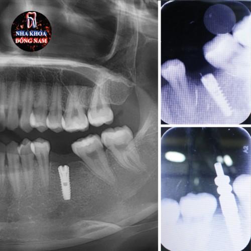 Cấy ghép Implant theo từng giai đoạn