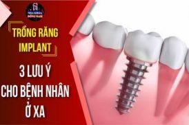 Lưu ý trồng răng Implant cho bệnh nhân ở xa