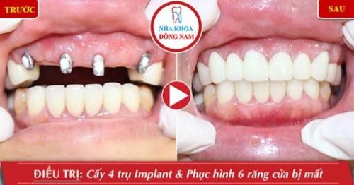 Lưu ý trồng răng Implant cho bệnh nhân ở xa 11