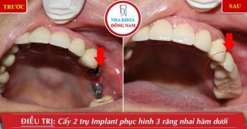 Lưu ý trồng răng Implant cho bệnh nhân ở xa 14