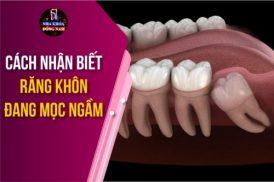 Cách nhận biết răng khôn đang mọc ngầm
