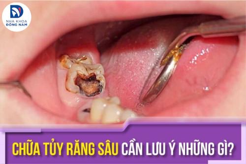 Chữa tủy răng sâu cần lưu ý những gì?