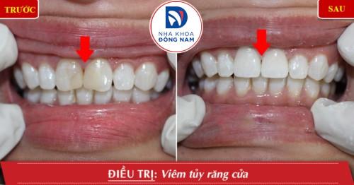 bọc sứ cho răng cửa viêm tủy
