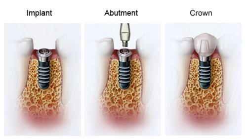 kỹ thuật cấy ghép implant
