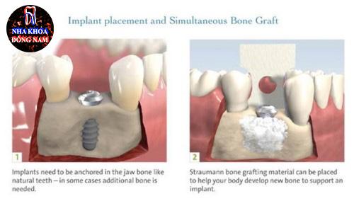 Phân biệt cấy ghép xương và màng xương trong implant