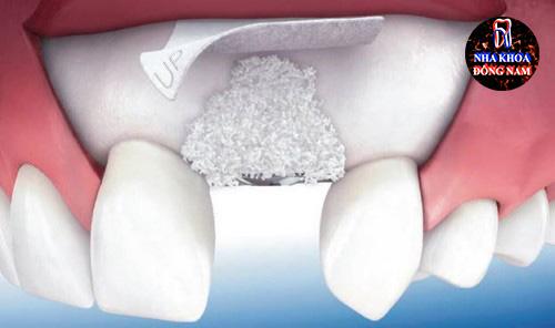 Phân biệt cấy ghép xương và màng xương trong implant 4