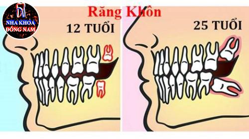 Triệu chứng mọc răng khôn và ý nghỉa của nó 2