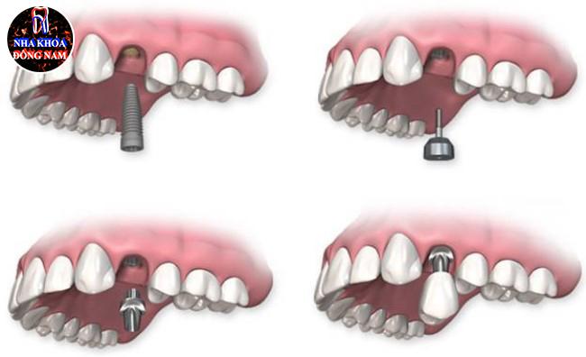 Trồng răng cho người trung niên và những điểm cần lưu ý 2