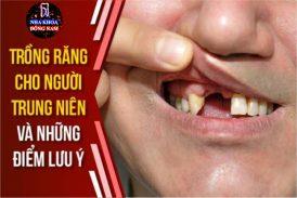 Trồng răng cho người trung niên và những điểm cần lưu ý