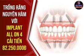 Trồng răng nguyên hàm với Implant all on 4 cải tiến