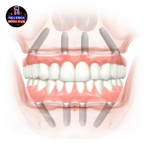 Trồng răng nguyên hàm với Implant all on 4 cải tiến 2