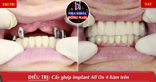 Trồng răng nguyên hàm với Implant all on 4 cải tiến 6