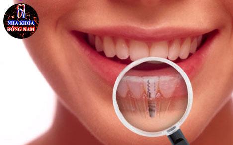 Trồng răng nguyên hàm với Implant all on 4 cải tiến 7