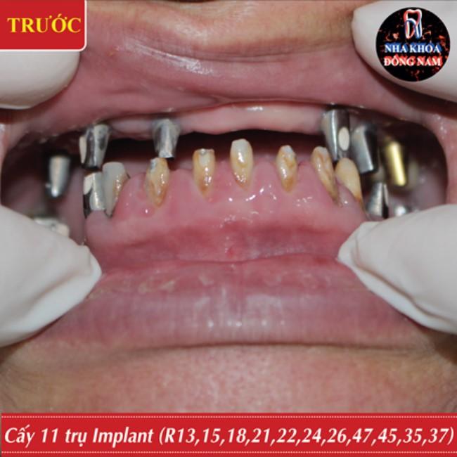 cấy ghép implant thay thế cầu răng sứ 2 hàm bị hỏng 5