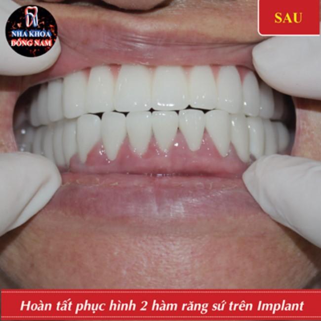 cấy ghép implant thay thế cầu răng sứ 2 hàm bị hỏng 6