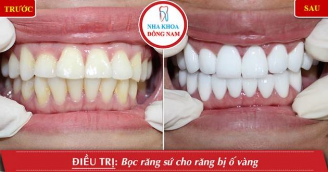 Phục hình răng sứ cho răng bị vàng răng