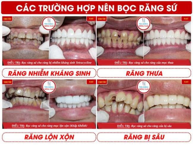 Các trường hợp phục hình răng sứ tại nha khoa Đông Nam