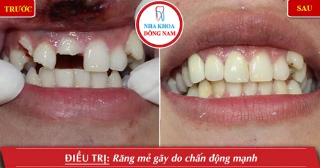 Làm răng sứ cho răng bị hư tổn