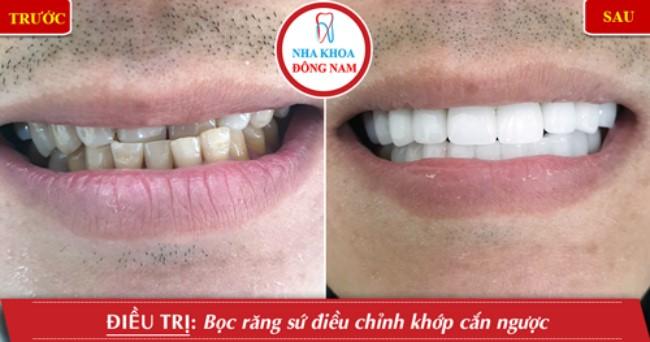 Làm răng sứ cho răng mọc lệch