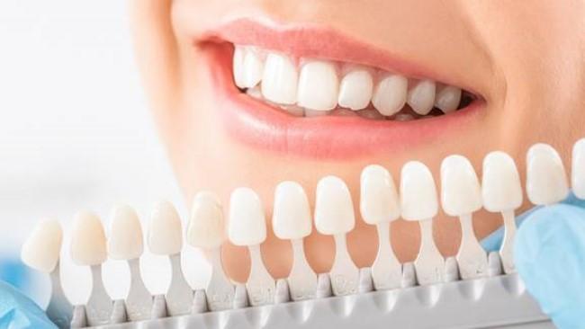 Lựa chọn màu răng phục hình sứ