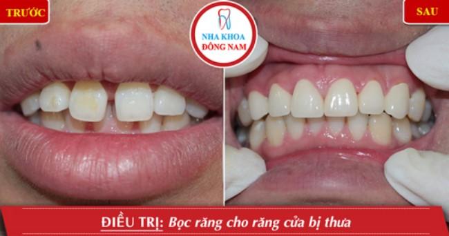 Phục hình răng sứ cho răng thưa