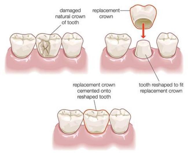 Quy trình làm răng sứ thẩm mỹ cho răng