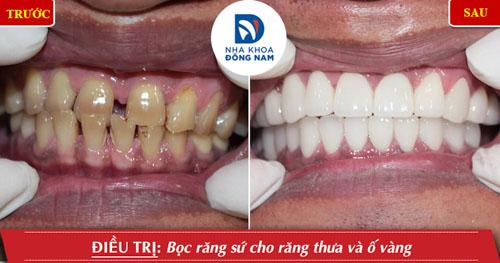 bọc sứ răng