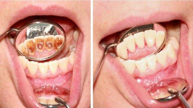 Cạo vôi răng nha chu điều trị hôi miệng