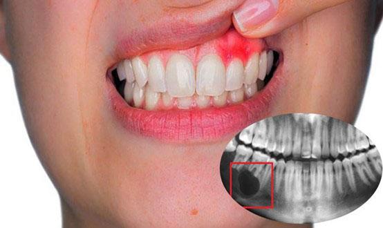 cắt chóp răng có nguy hiểm không