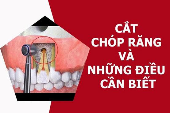 cắt chóp răng để làm gì