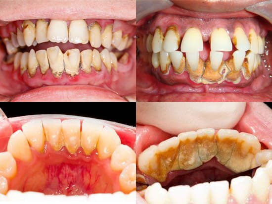 chi phí lấy cao răng bằng sóng siêu âm
