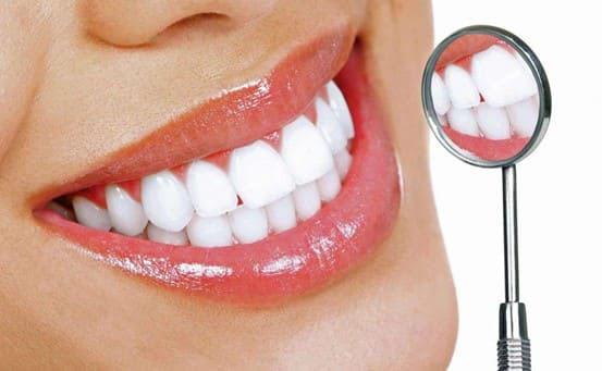 Hoàn tất mặt dán sứ lên răng