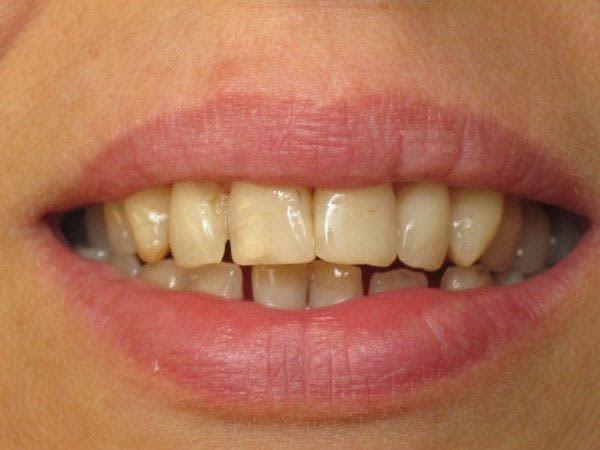 làm trắng răng bằng chuối