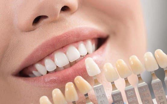 mặt dán sứ siêu mỏng không cần mài răng