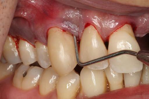 nhổ 1 cái răng khôn hết bao nhiêu tiền