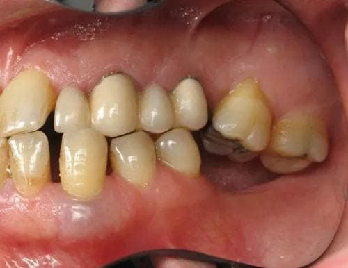 nhổ răng số 7 hàm trên