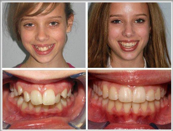 Niềng răng móm đem lại hàm răng đều đẹp, khuôn mặt cân đối
