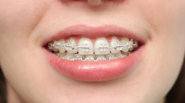 niềng răng móm hết bao nhiêu tiền